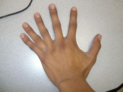 P5-Six finger hand | alazaro171