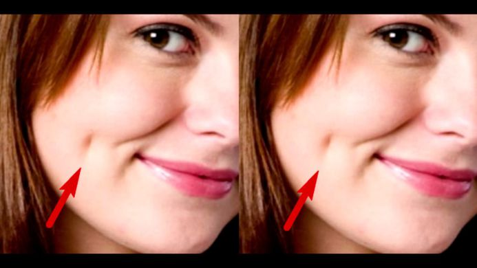 If You Have Dimples In Your Cheeks, What It Really Means ...