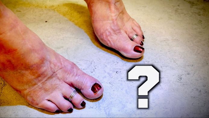 Why My Wife Has 8 Toes! | THE SHOCKING TRUTH | Dr. Paul ...